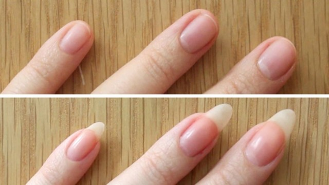 Grow Your Nails Fast – Nail Care